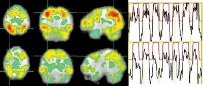 визуализация активности мозга творческой личности