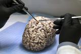 26 фактов о мозге, которые взорвут ваш мозг
