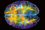 Аминокислоты для мозга